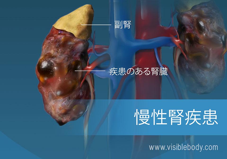 健康な腎臓と疾患のある腎臓との比較