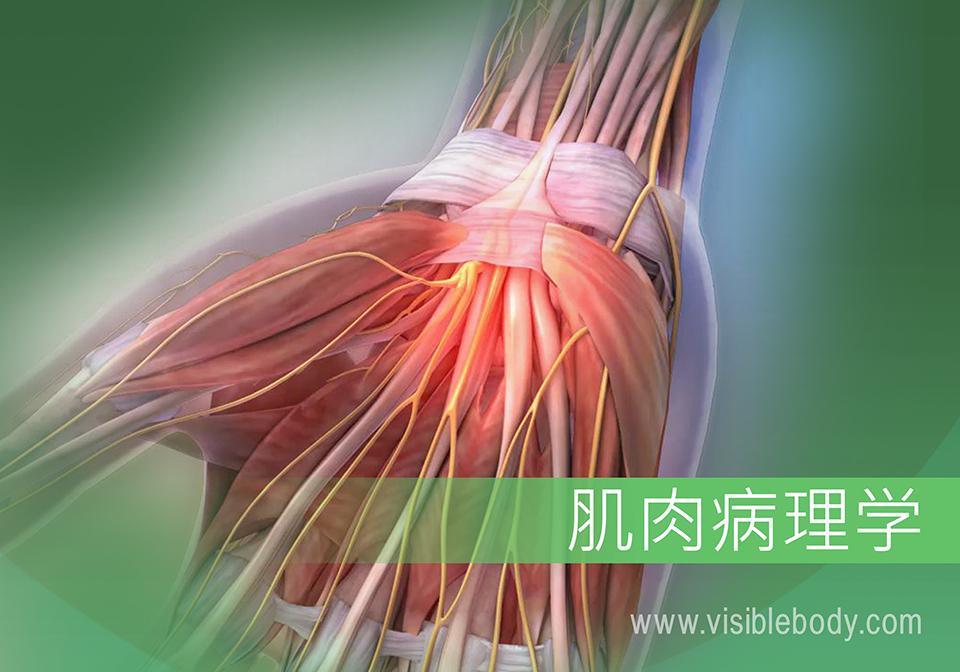 肌肉病理学