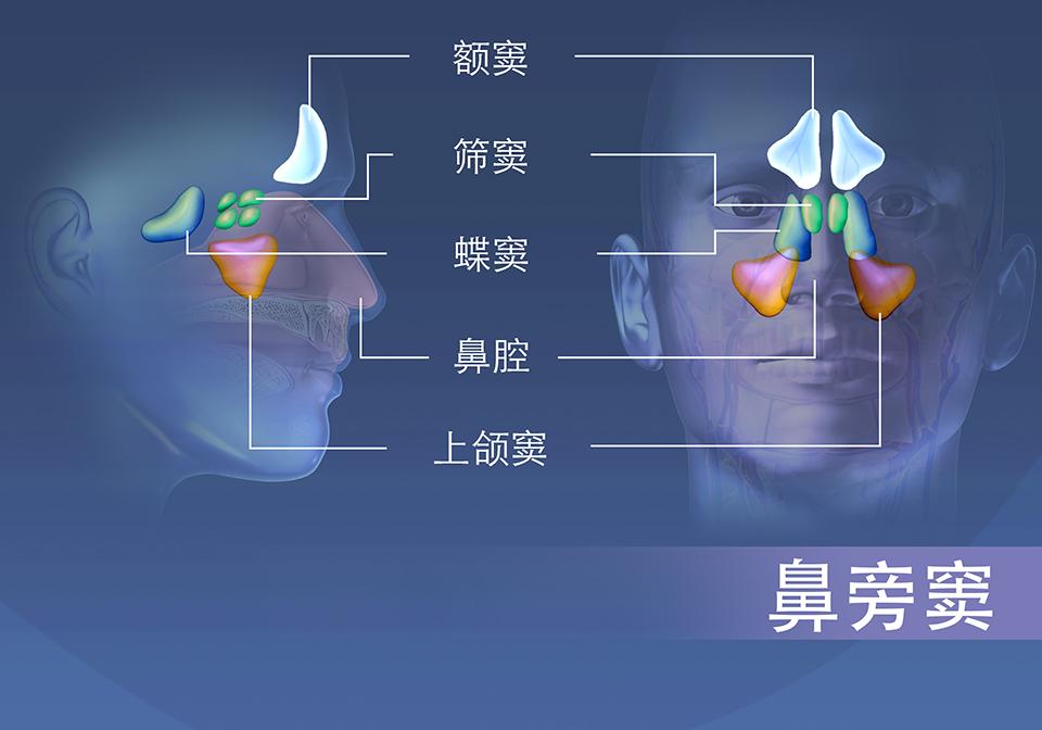鼻旁窦区域; 额窦、筛窦、蝶骨和上颌窦