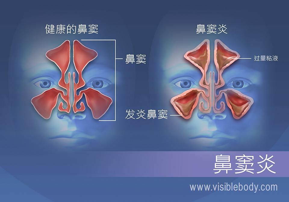 鼻窦炎患者的鼻窦有过量粘液并且窦壁发炎
