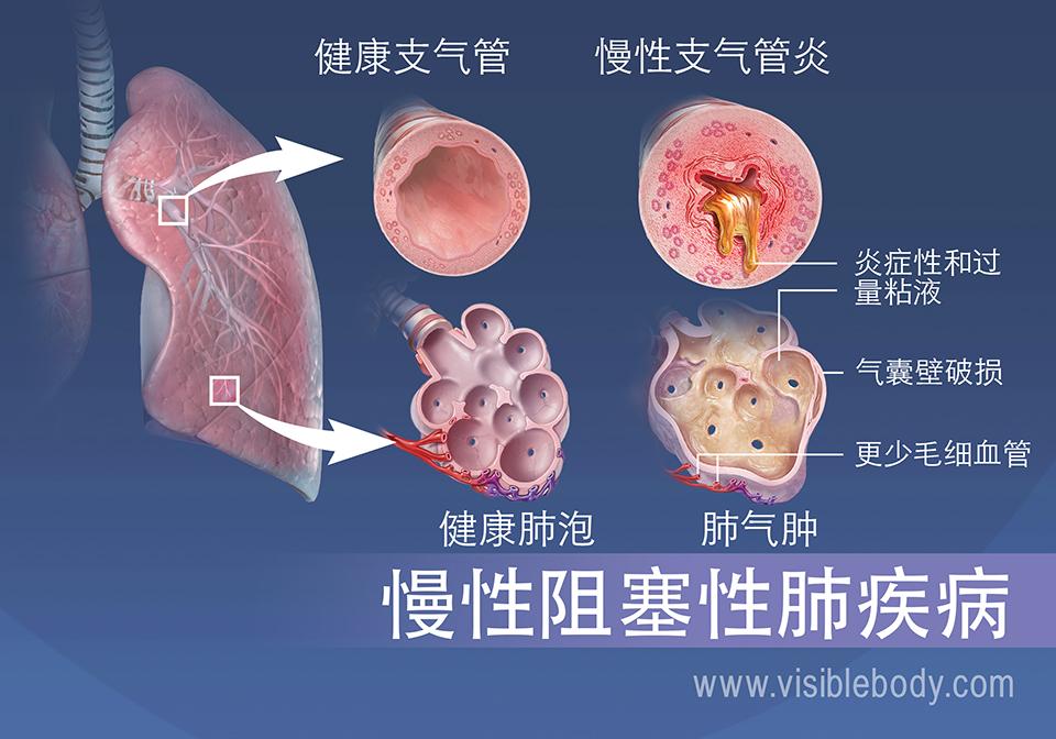患有慢性支气管炎的人的细支气管发炎并且粘液过多。 肺气肿患者的肺泡被撕裂,毛细血管减少