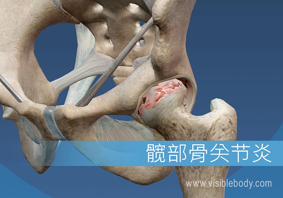 磨损和衰老可导致髋关节骨关节炎