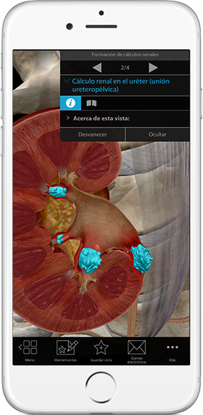 kidney-stones-ureter-pathology-physiology-iphone_es