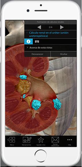 kidney-stones-ureter-pathology-physiology-iphone_es