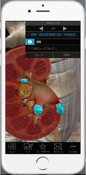 kidney-stones-ureter-pathology-physiology-iphone_ja