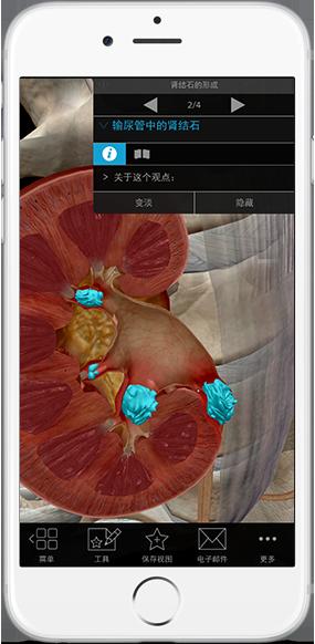 kidney-stones-ureter-pathology-physiology-iphone_zh