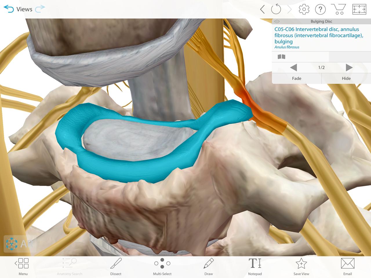 3D model of vertebra with bulging disc