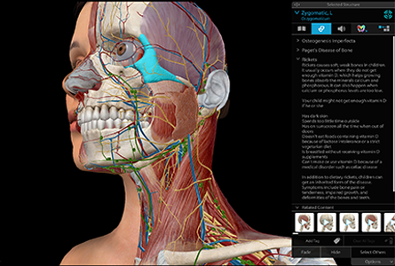 VB Courseware showing anterior view of zygomatic in 3d